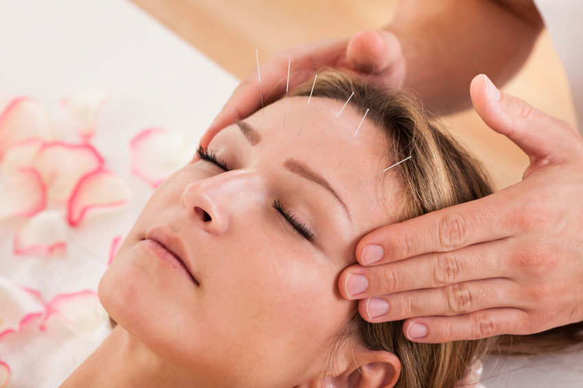 headache-acupuncture